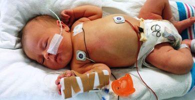 bebe enfermo con varicela